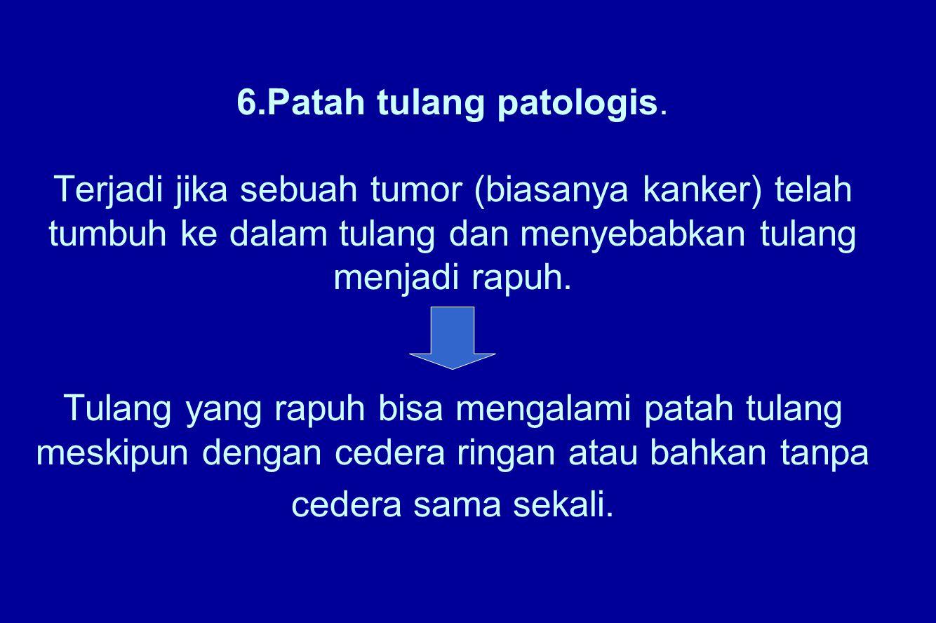 6. Patah tulang patologis
