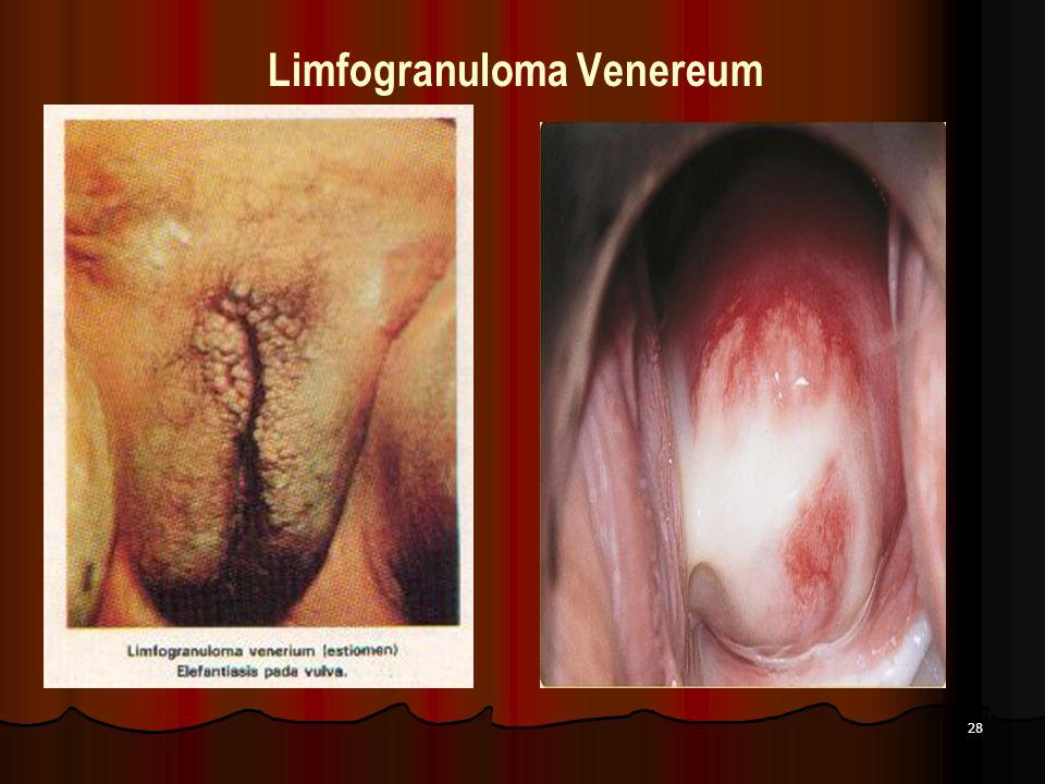 Limfogranuloma Venereum