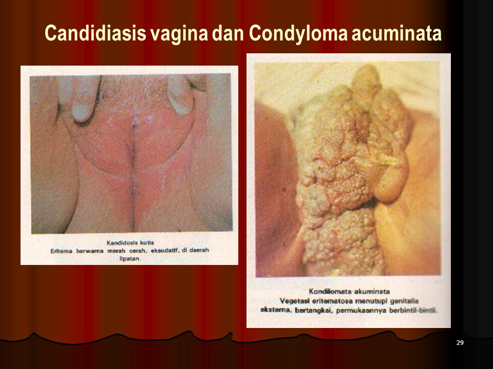 Candidiasis vagina dan Condyloma acuminata