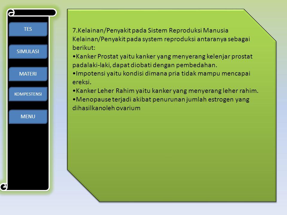 7.Kelainan/Penyakit pada Sistem Reproduksi Manusia