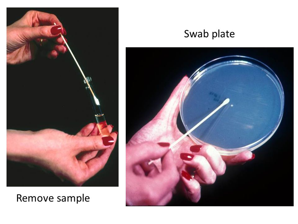 Swab plate Remove sample