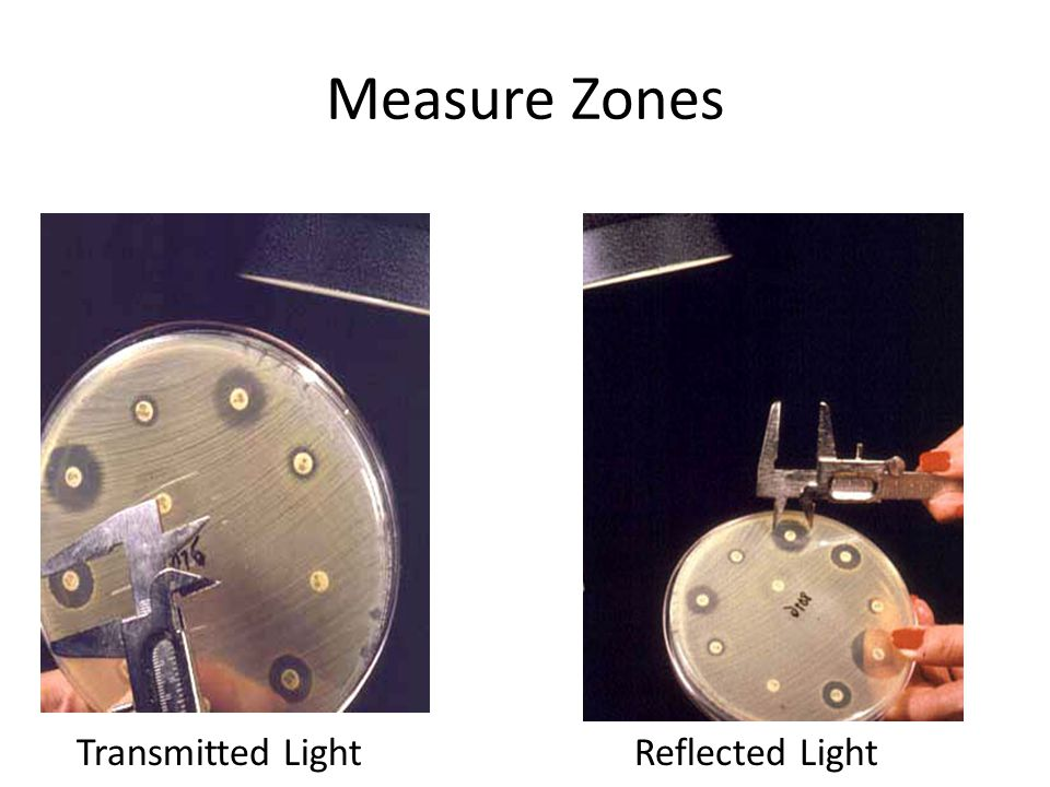 Measure Zones Transmitted Light Reflected Light
