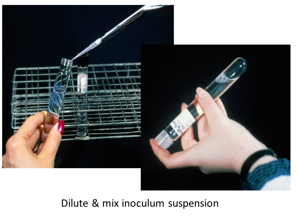 Dilute & mix inoculum suspension