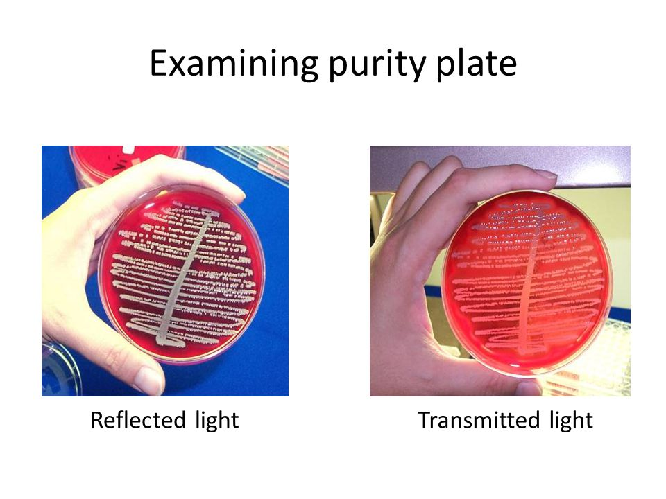 Examining purity plate