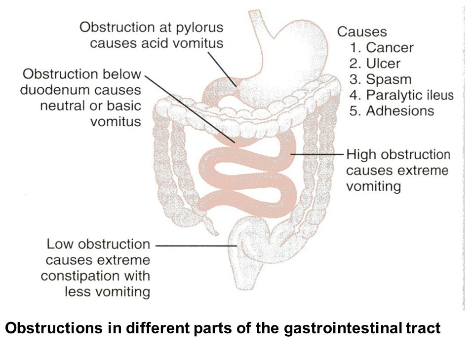 Obstructions in different parts of the gastrointestinal tract
