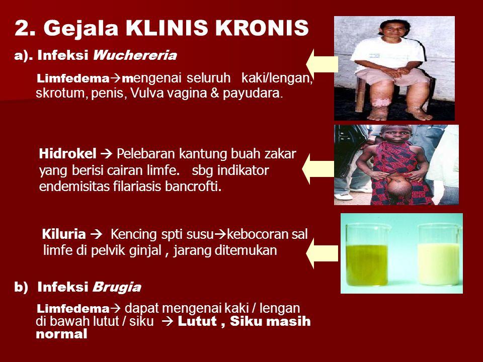 2. Gejala KLINIS KRONIS a). Infeksi Wuchereria
