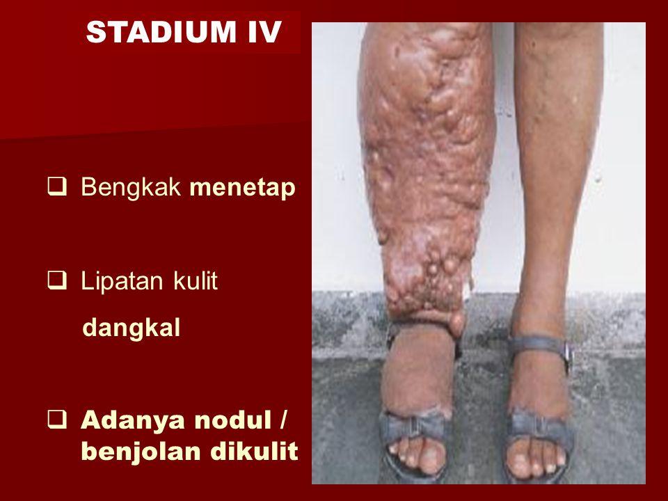 STADIUM IV Bengkak menetap Lipatan kulit dangkal