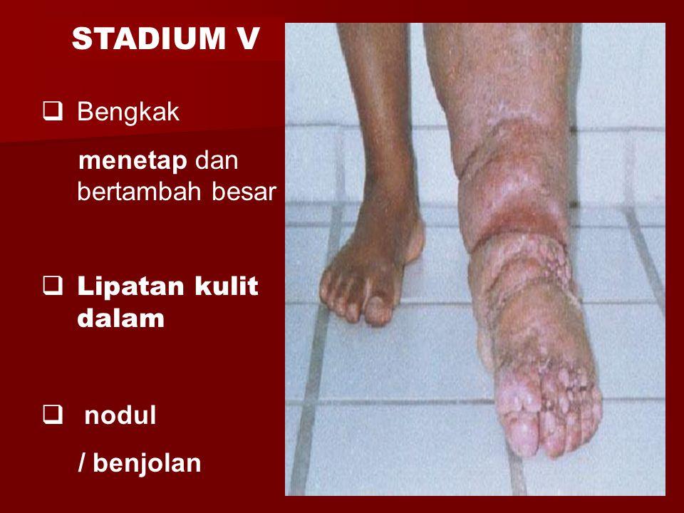 STADIUM V Bengkak menetap dan bertambah besar Lipatan kulit dalam