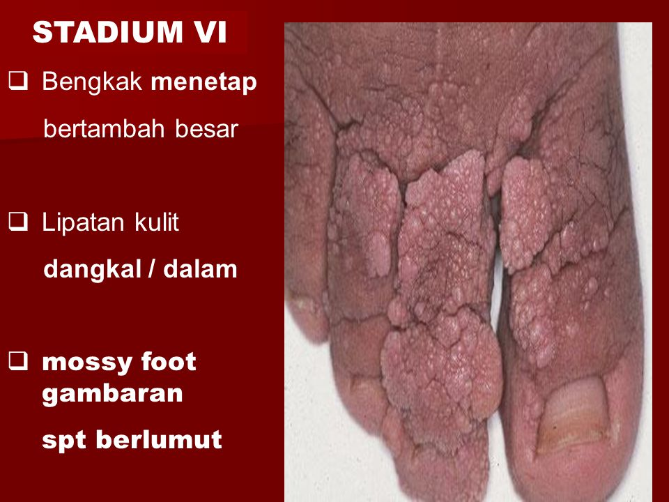 STADIUM VI Bengkak menetap bertambah besar Lipatan kulit