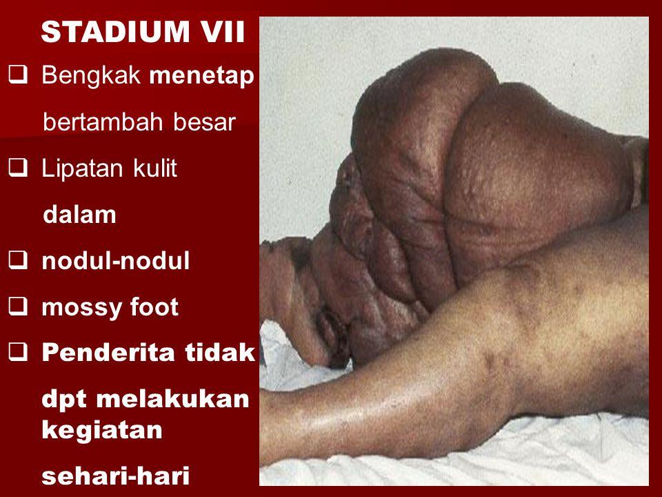 STADIUM VII Bengkak menetap bertambah besar Lipatan kulit dalam