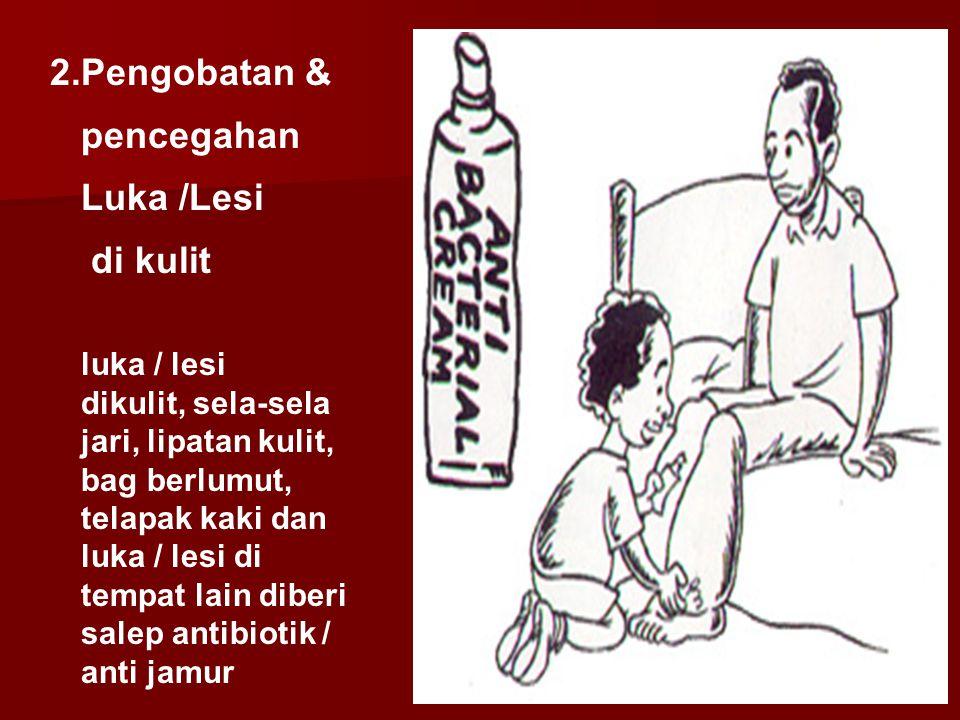 2.Pengobatan & pencegahan Luka /Lesi di kulit