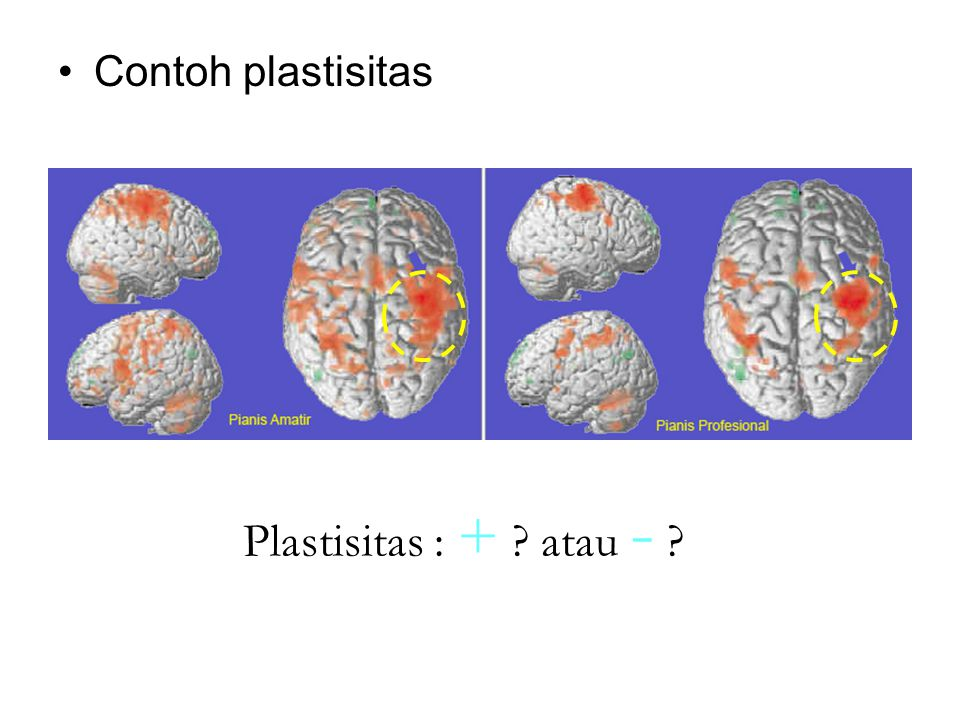 Contoh plastisitas Plastisitas : + atau -