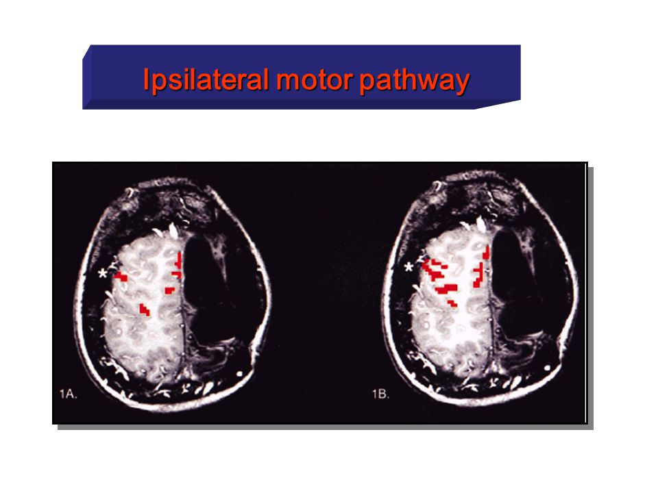 Ipsilateral motor pathway
