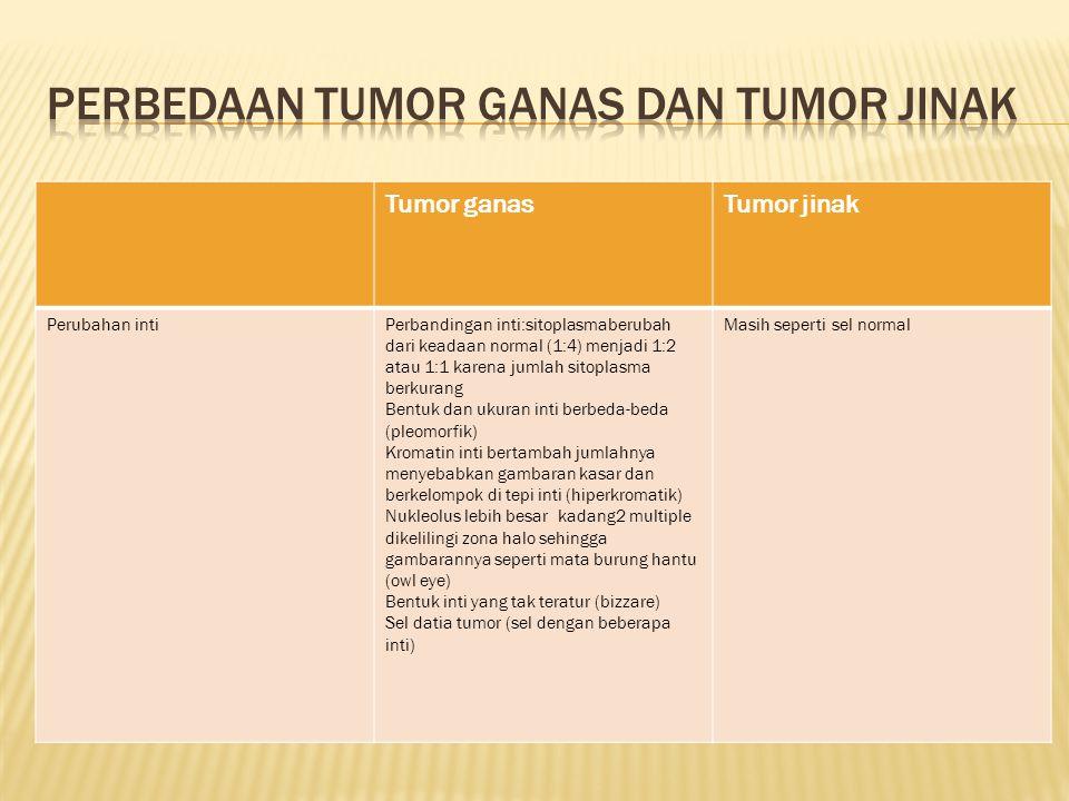 Perbedaan tumor ganas dan tumor jinak