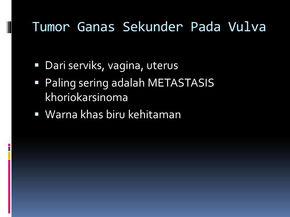 Tumor Ganas Sekunder Pada Vulva