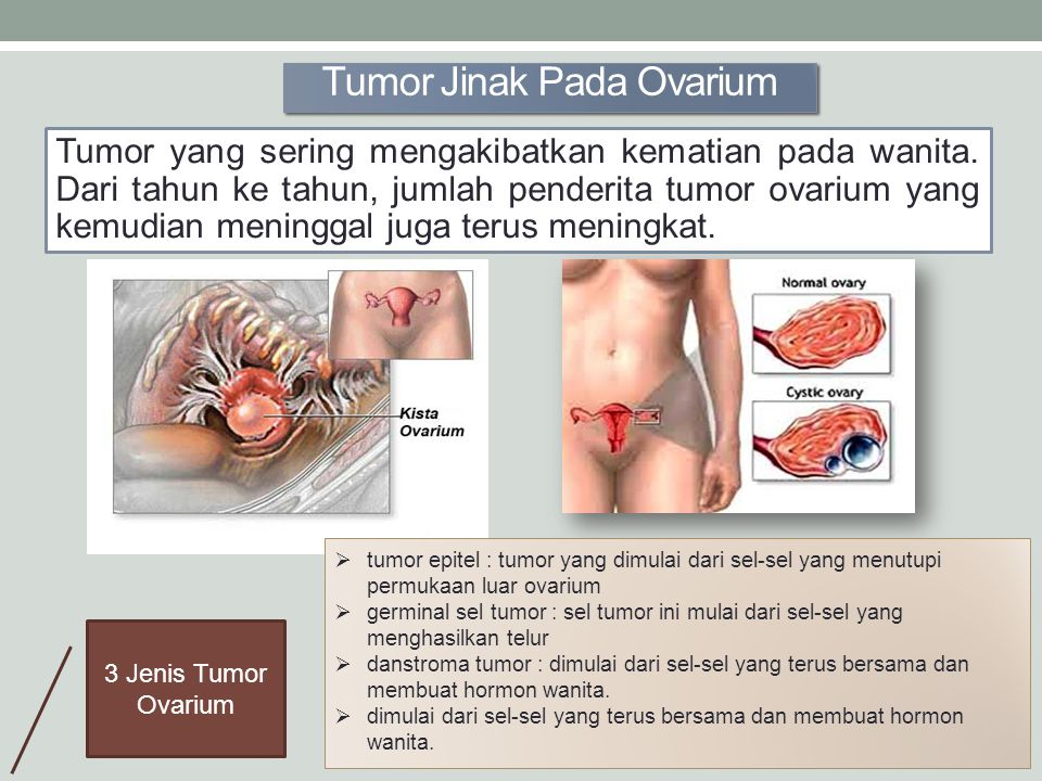 Tumor Jinak Pada Ovarium