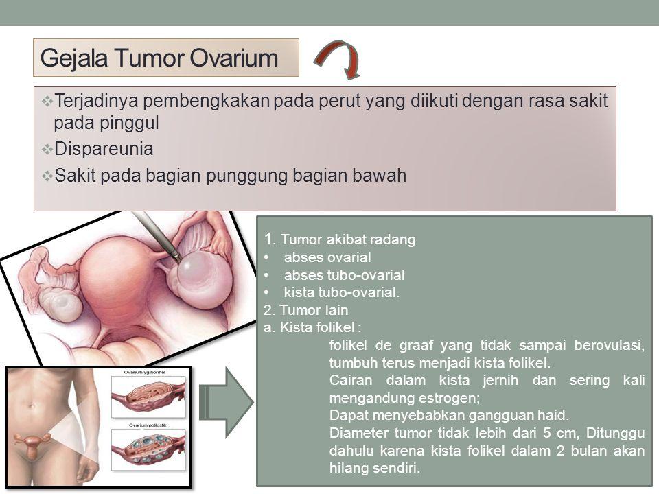 Gejala Tumor Ovarium Terjadinya pembengkakan pada perut yang diikuti dengan rasa sakit pada pinggul.
