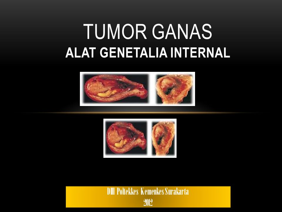 Tumor Ganas ALAT GENETALIA INTERNAL