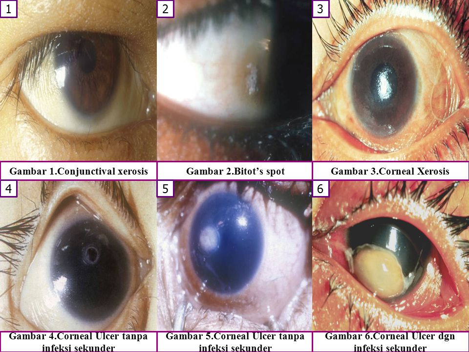 1 2 3 4 5 6 Gambar 1.Conjunctival xerosis Gambar 2.Bitot's spot