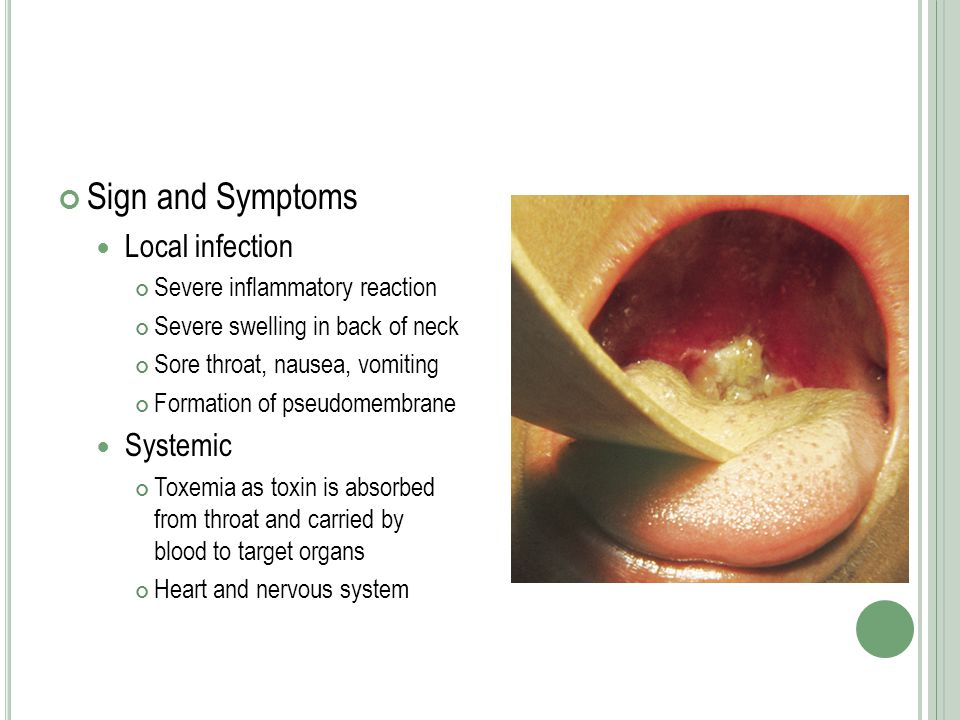 Sign and Symptoms Local infection Systemic