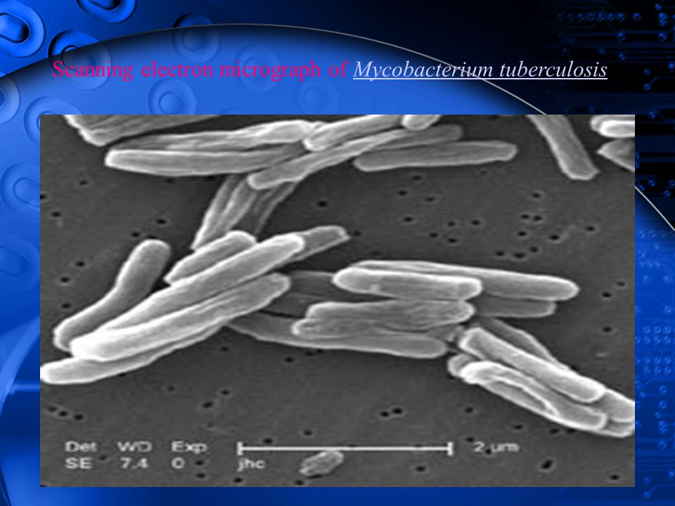 Scanning electron micrograph of Mycobacterium tuberculosis