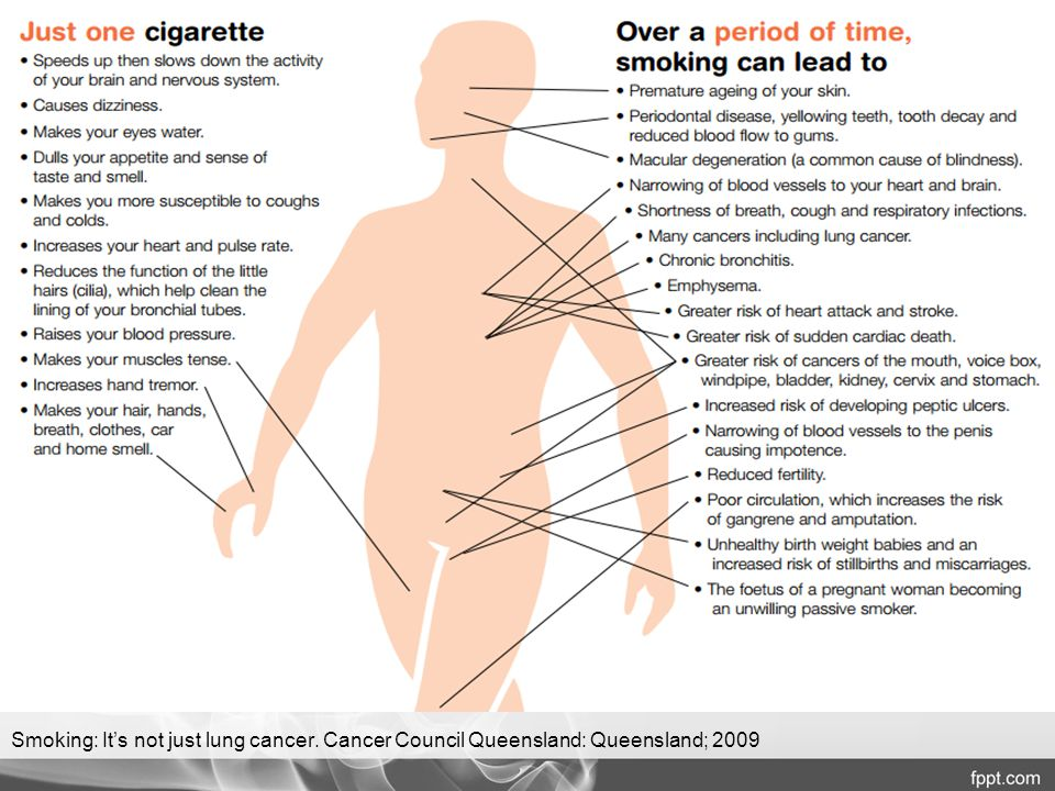 Smoking: It's not just lung cancer