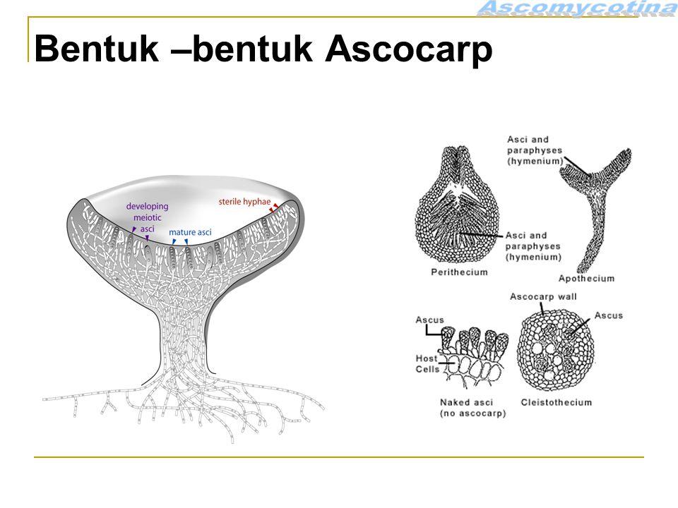 Bentuk –bentuk Ascocarp