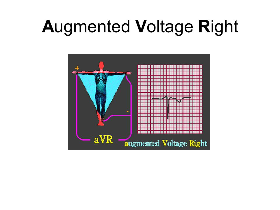 Augmented Voltage Right