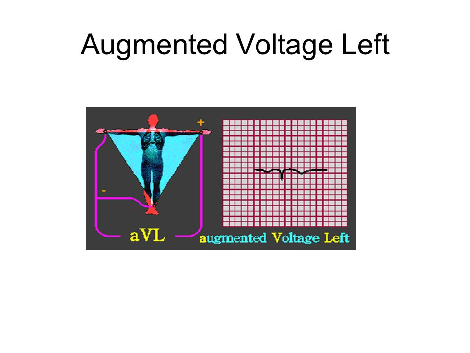 Augmented Voltage Left
