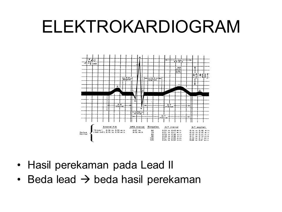 ELEKTROKARDIOGRAM Hasil perekaman pada Lead II