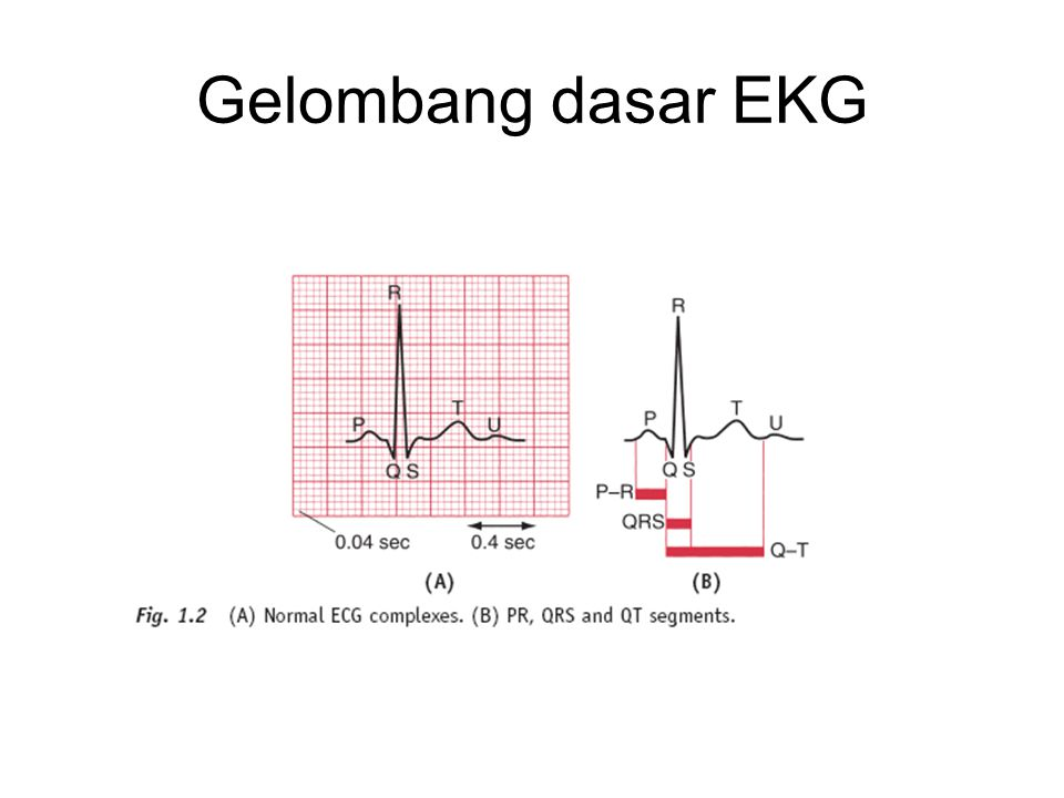 Gelombang dasar EKG