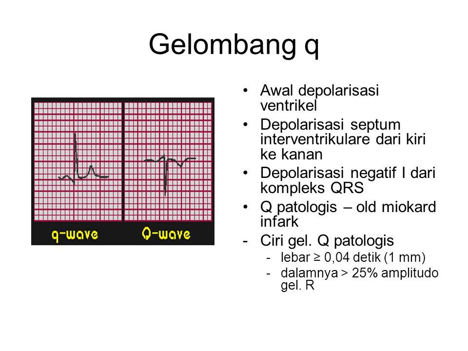 Gelombang q Awal depolarisasi ventrikel