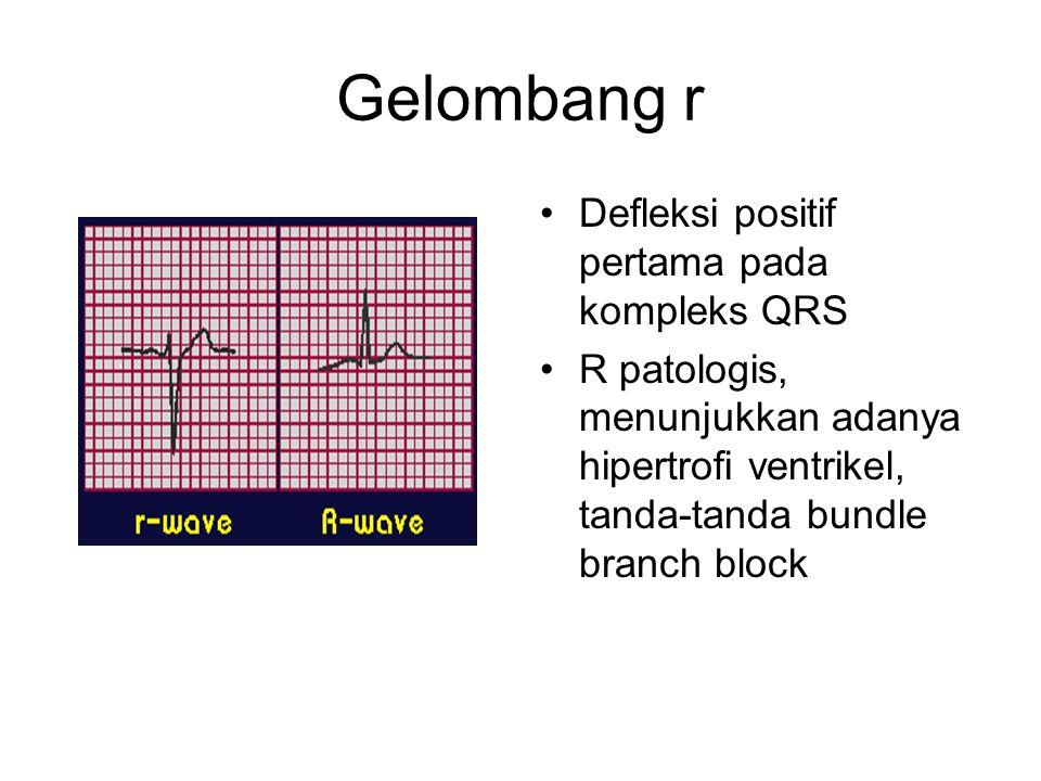 Gelombang r Defleksi positif pertama pada kompleks QRS