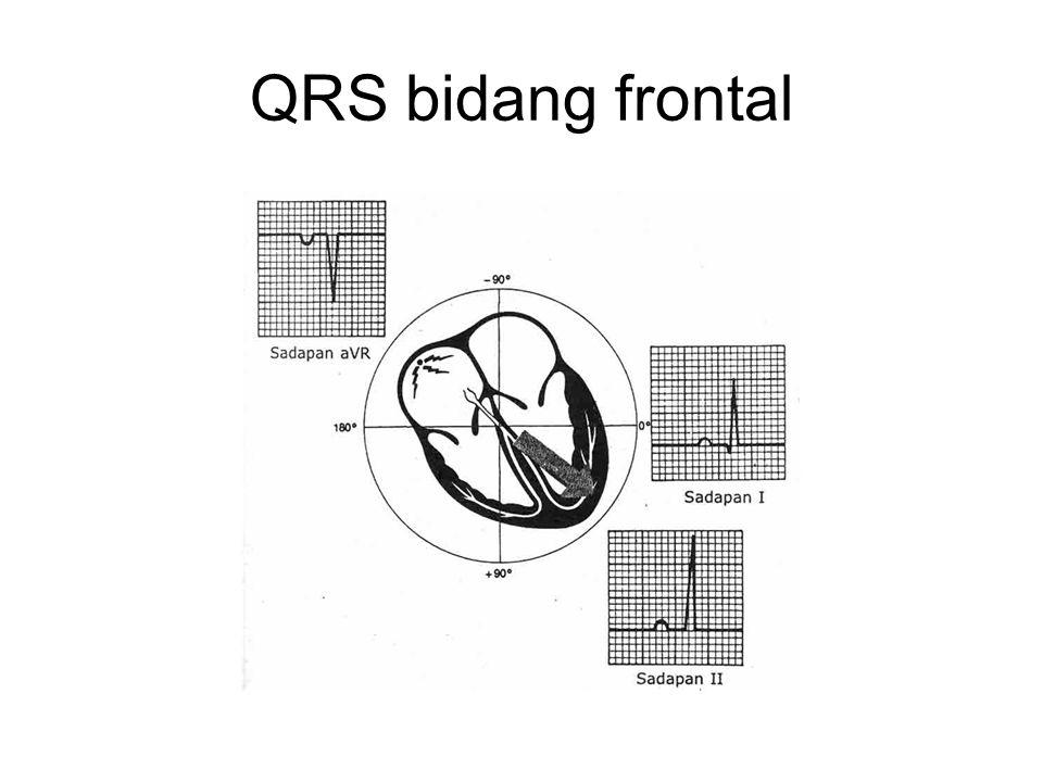 QRS bidang frontal