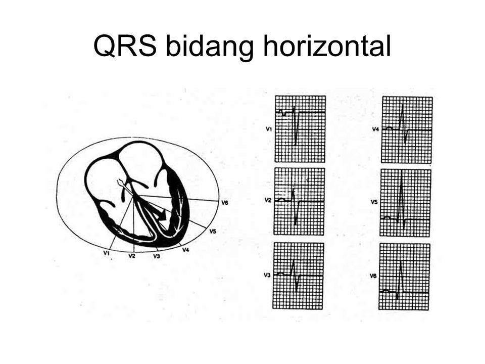 QRS bidang horizontal