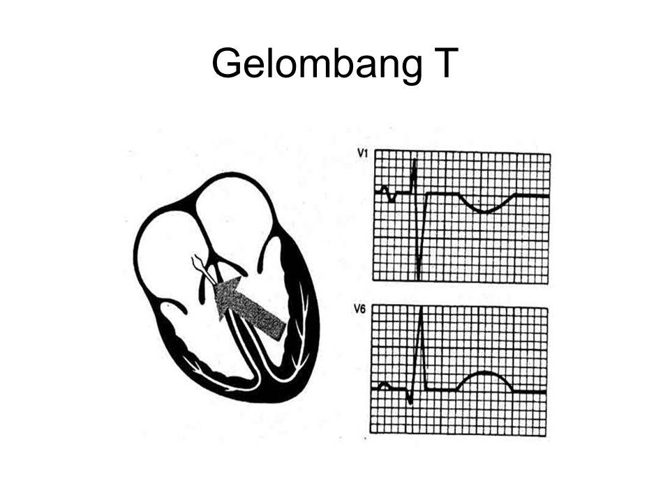 Gelombang T