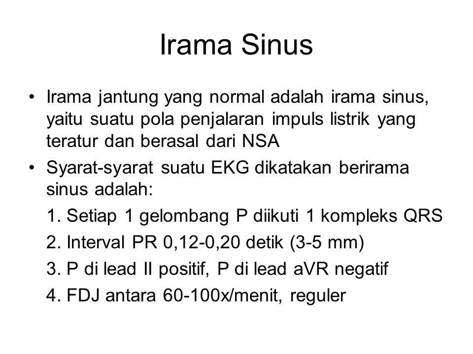 Irama Sinus Irama jantung yang normal adalah irama sinus, yaitu suatu pola penjalaran impuls listrik yang teratur dan berasal dari NSA.