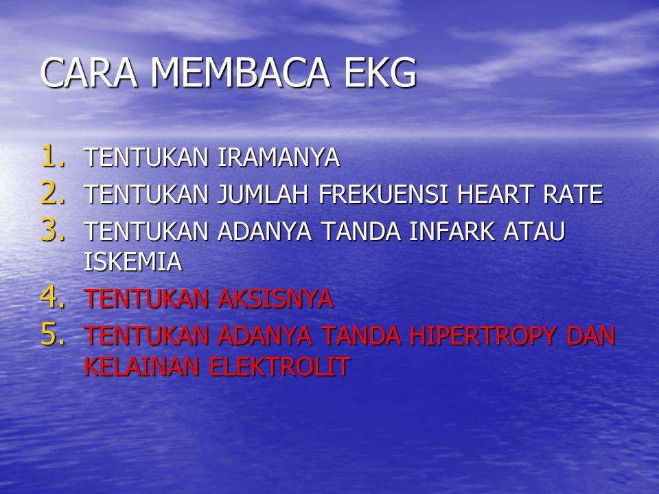 CARA MEMBACA EKG TENTUKAN IRAMANYA