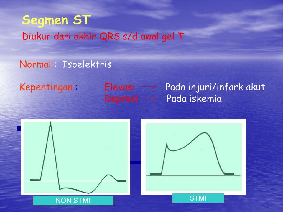 Segmen ST Diukur dari akhir QRS s/d awal gel T Normal : Isoelektris