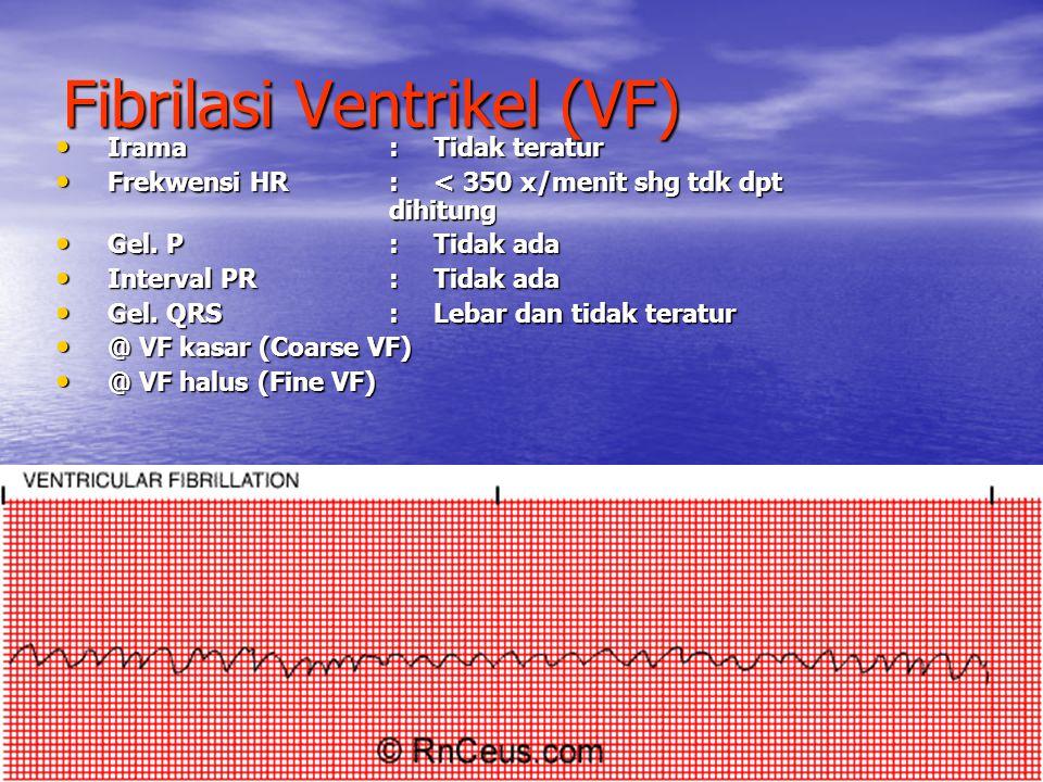 Fibrilasi Ventrikel (VF)