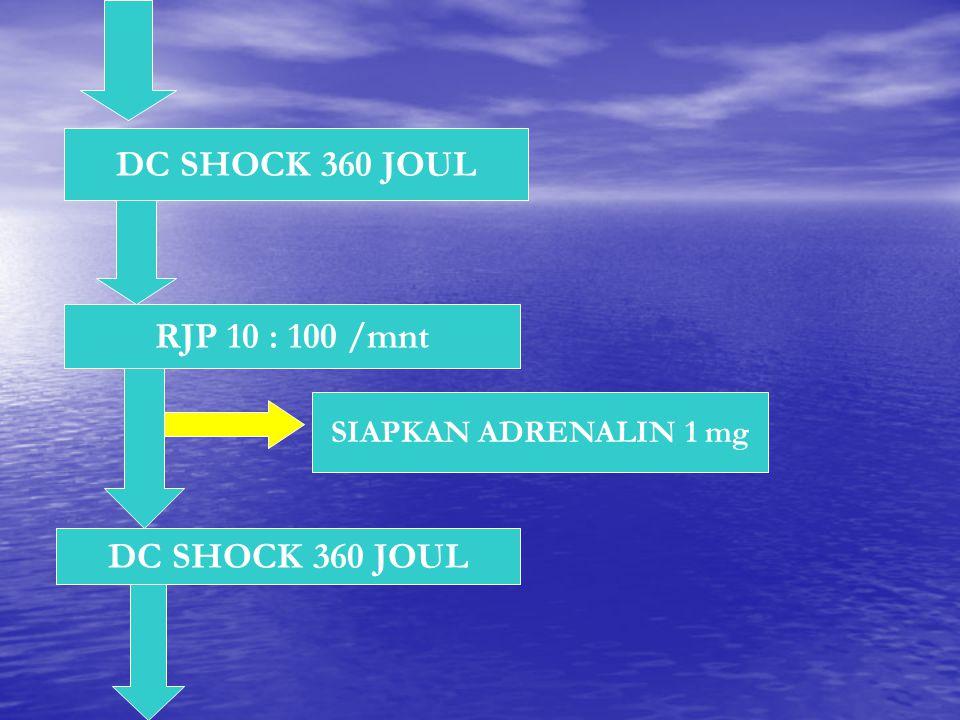 DC SHOCK 360 JOUL RJP 10 : 100 /mnt DC SHOCK 360 JOUL