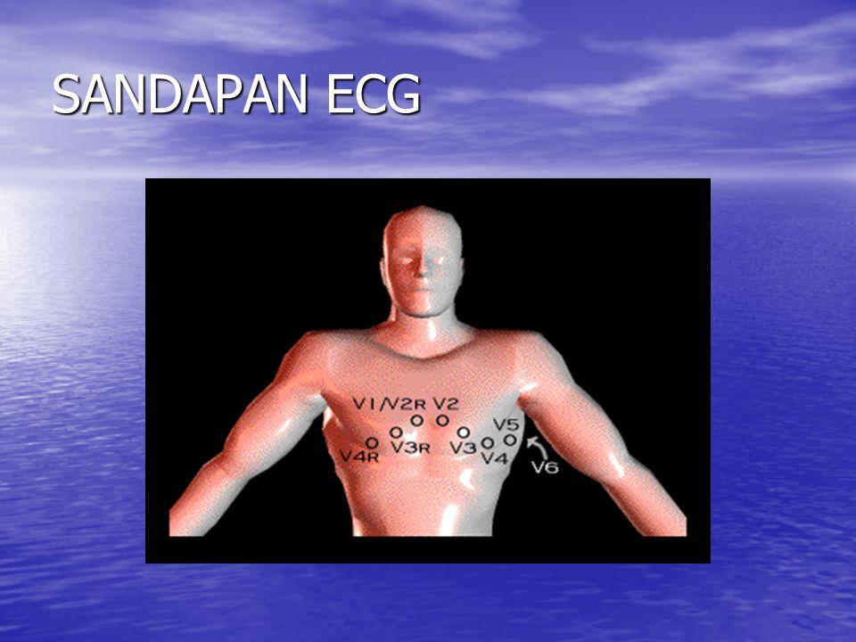 SANDAPAN ECG