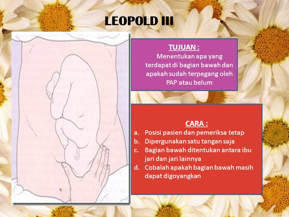LEOPOLD III TUJUAN : CARA :