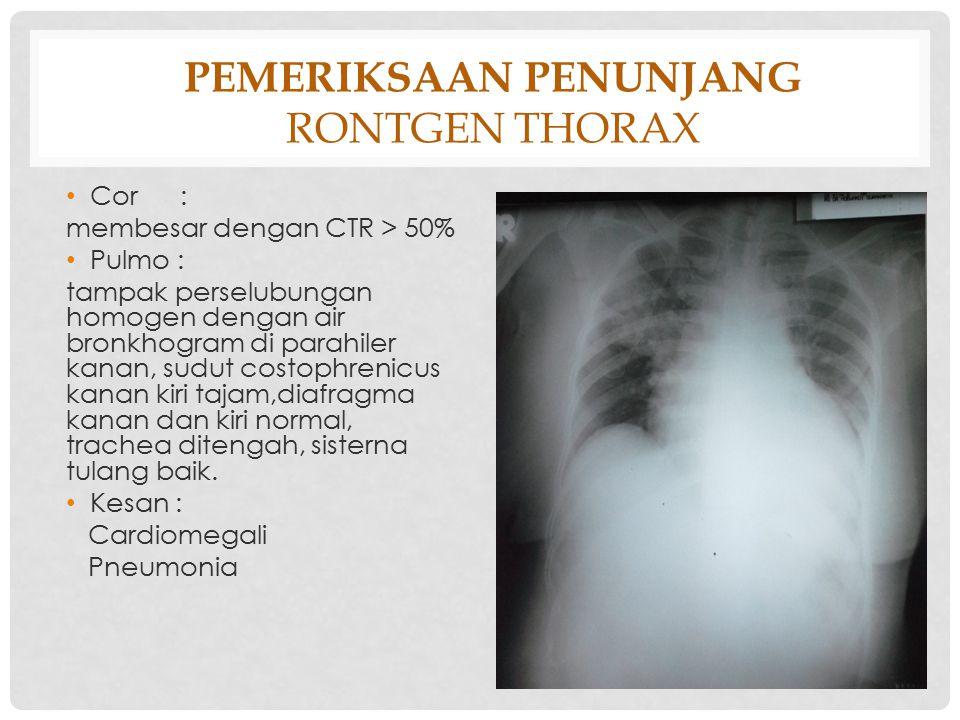 Pemeriksaan Penunjang Rontgen thorax