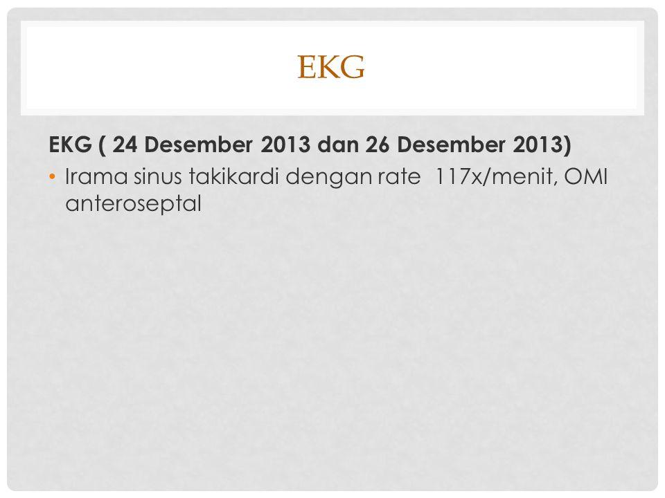 EKG EKG ( 24 Desember 2013 dan 26 Desember 2013)
