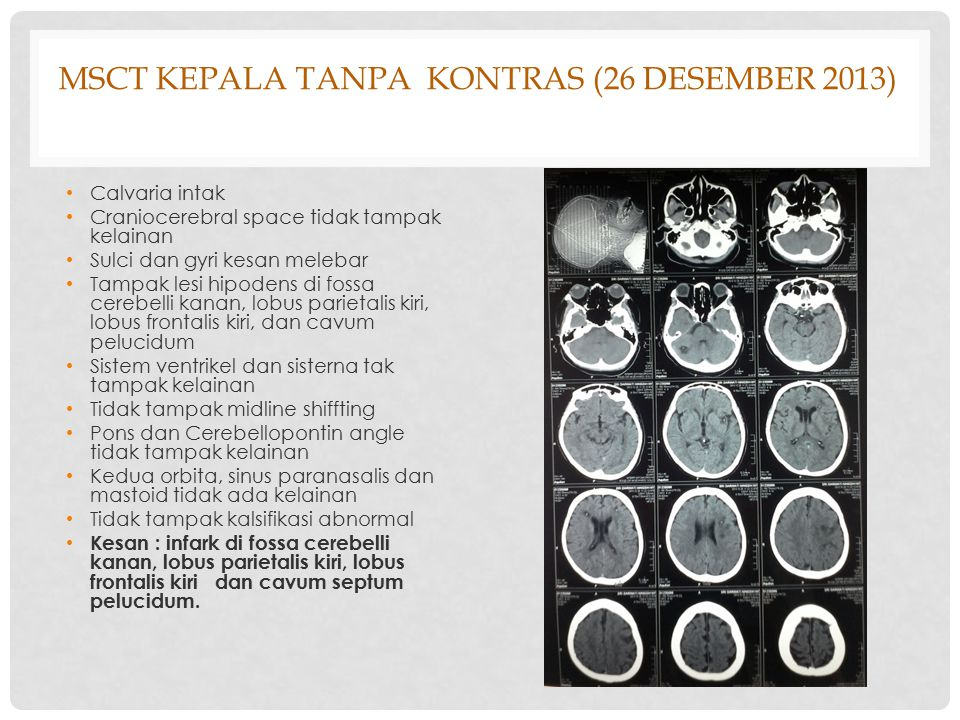 MSCT Kepala tanpa kontras (26 Desember 2013)