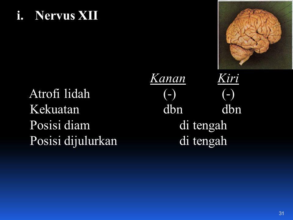 Nervus XII Kanan Kiri. Atrofi lidah (-) (-) Kekuatan dbn dbn. Posisi diam di tengah.