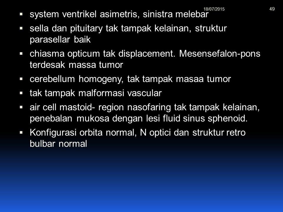 system ventrikel asimetris, sinistra melebar