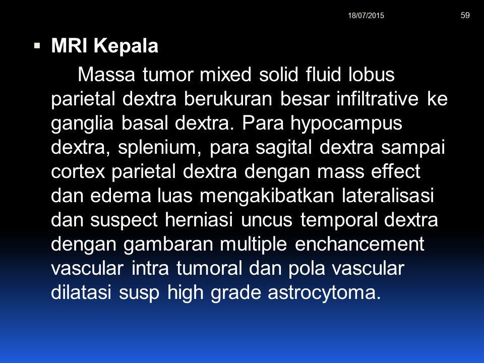 12/04/2017 MRI Kepala.