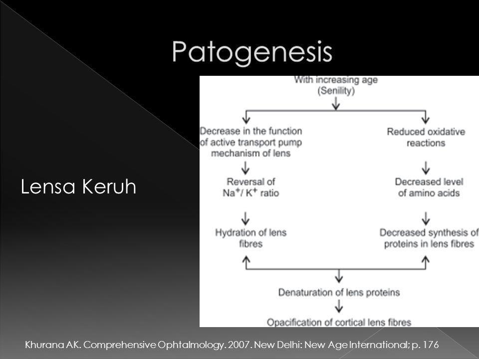 Patogenesis Lensa Keruh